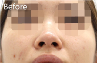 MIYAフェイスクリニックの鼻尖縮小(他院修正)、鼻翼縮小(他院修正)の症例写真(ビフォー)