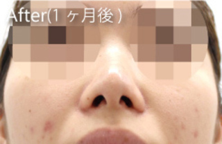 MIYAフェイスクリニックの鼻尖縮小(他院修正)、鼻翼縮小(他院修正)の症例写真(アフター)