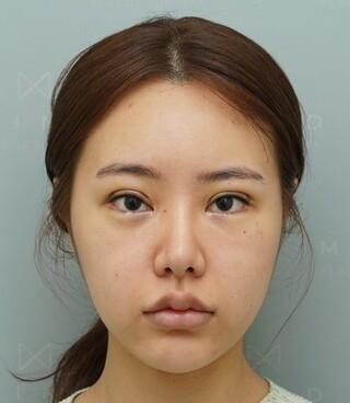 マインド整形外科の輪郭整形+鼻再手術の症例写真(ビフォー)