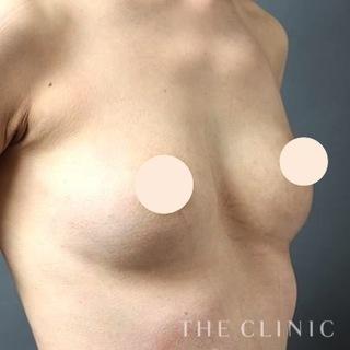 THE CLINIC(ザ・クリニック)東京院のシリコンバッグ豊胸の修正(バッグ除去+脂肪注入豊胸)の症例写真(アフター)