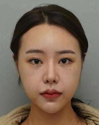 マインド整形外科の輪郭整形+鼻再手術の症例写真(アフター)