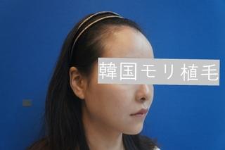 毛理(モリ)自毛植毛クリニックの女性の生え際矯正 FUT(切開法) 2500本(1250株数)in Koreaの症例写真(ビフォー)