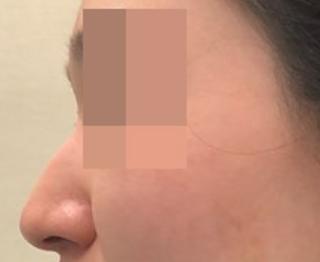 ミナ美容外科の鼻整形の症例写真(ビフォー)