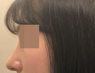 ミナ美容外科の鼻整形の症例写真(アフター)