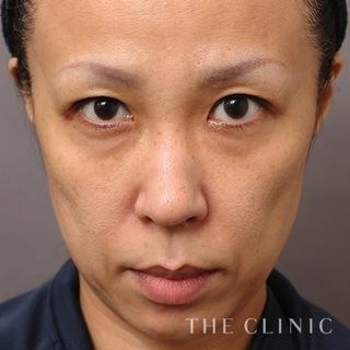 THE CLINIC(ザ・クリニック)東京院の脂肪注入(SRF注入)の症例写真(ビフォー)