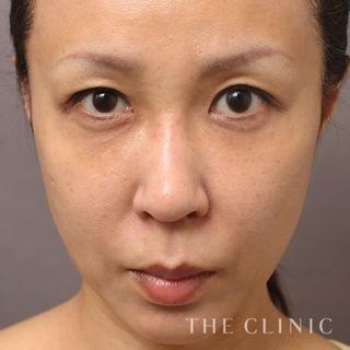 THE CLINIC(ザ・クリニック)東京院の脂肪注入(SRF注入)の症例写真(アフター)