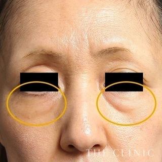 THE CLINIC(ザ・クリニック)東京院の脂肪注入による目の下のたるみとりの症例写真(ビフォー)