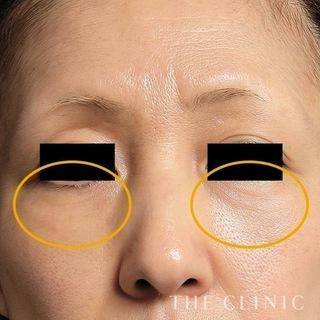 THE CLINIC(ザ・クリニック)東京院の脂肪注入による目の下のたるみとりの症例写真(アフター)