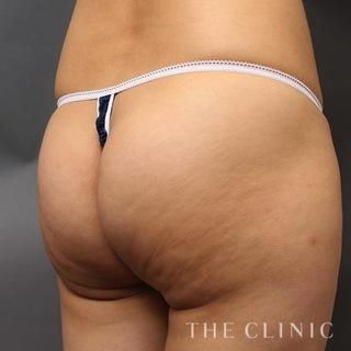 THE CLINIC(ザ・クリニック)東京院の太ももの脂肪吸引の失敗修正の症例写真(ビフォー)