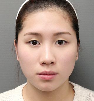 ITEM美容(整形)外科の鼻整形 / 脂肪移植の症例写真(ビフォー)