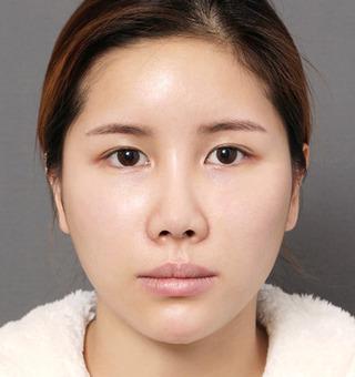 ITEM美容(整形)外科の鼻整形 / 脂肪移植の症例写真(アフター)
