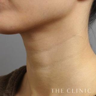 THE CLINIC(ザ・クリニック)名古屋院の脂肪注入による首のシワ治療の症例写真(ビフォー)