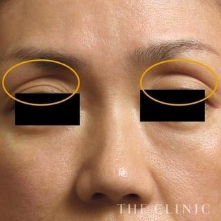THE CLINIC(ザ・クリニック)名古屋院の目の上の脂肪注入(マイクロCRF注入)の症例写真(ビフォー)