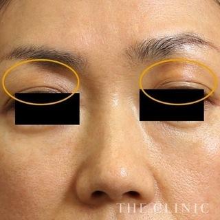 THE CLINIC(ザ・クリニック)名古屋院の目の上の脂肪注入(マイクロCRF注入)の症例写真(アフター)