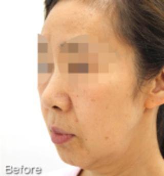 MIYAフェイスクリニックのミニリフト(ミドル~ロー)・脂肪吸引(アゴ)の症例写真(ビフォー)