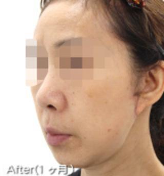MIYAフェイスクリニックのミニリフト(ミドル~ロー)・脂肪吸引(アゴ)の症例写真(アフター)