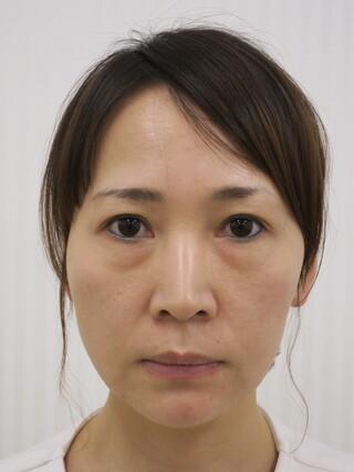 銀座長澤クリニックのハレーヌリフト(ワイド)の症例写真(ビフォー)