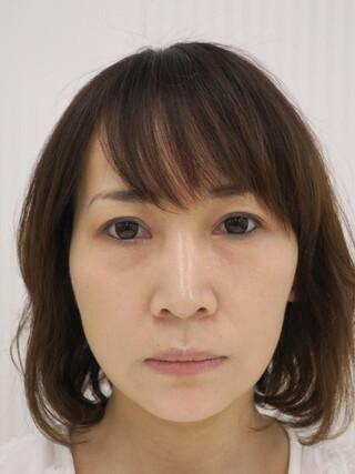 銀座長澤クリニックのハレーヌリフト(ワイド)の症例写真(アフター)