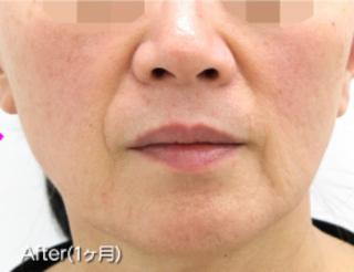 MIYAフェイスクリニックのダーマペン4 ヴェルヴェットスキンの症例写真(アフター)