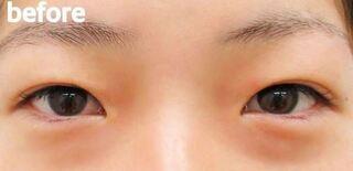 高崎TAクリニックアソシエの全切開二重+目頭切開術 の症例写真(ビフォー)