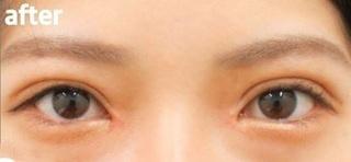 高崎TAクリニックアソシエの全切開二重+目頭切開術 の症例写真(アフター)
