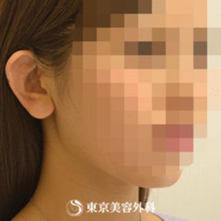 東京美容外科 東京新宿院の小顔エラ骨切り(口外法)の症例写真(ビフォー)