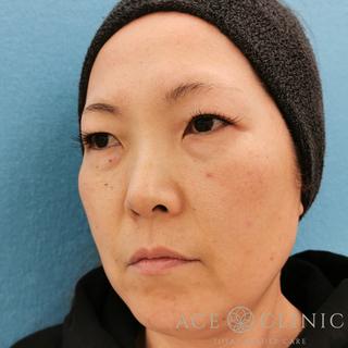 エースクリニックのヒアルロン酸注入の症例写真(ビフォー)
