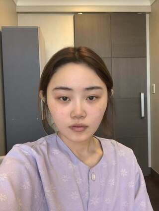 TS美容外科の輪郭, 鼻の再手術、目:イ・サンギュン先生の症例写真(ビフォー)