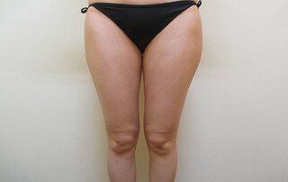 大阪 雅 -miyabi- 美容外科の脂肪吸引 太もも全周・臀部の症例写真(ビフォー)