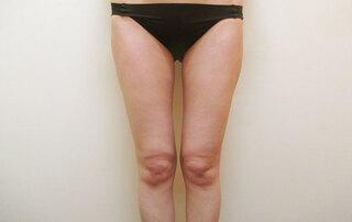 大阪 雅 -miyabi- 美容外科の脂肪吸引 太もも全周・臀部の症例写真(アフター)