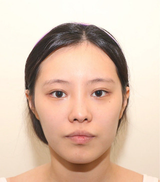 TS美容外科の輪郭3種 鼻の症例写真(ビフォー)