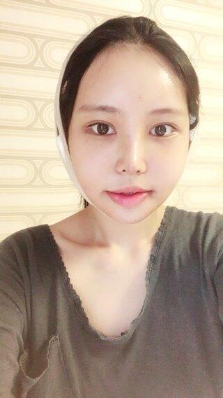 TS美容外科の輪郭3種 鼻の症例写真(アフター)