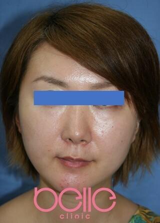 ベル美容外科クリニックのFGF注入(目の下+法令線)の症例写真(アフター)
