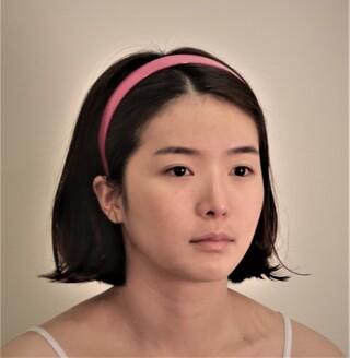 TS美容外科の自然癒着(再手術)、 目付き矯正(切開)、鼻の再手術 の症例写真(ビフォー)