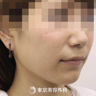 東京美容外科 東京新宿院の小顔エラ骨切り(口外法)の症例写真(アフター)