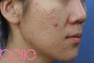 ベル美容外科クリニックのFGF注入(ニキビ跡)の症例写真(ビフォー)
