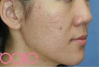ベル美容外科クリニックのFGF注入(ニキビ跡)の症例写真(アフター)