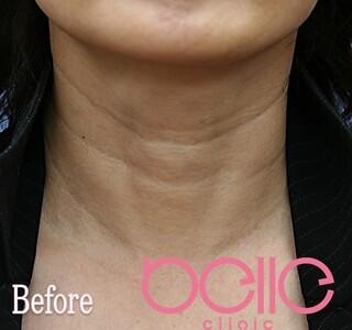 ベル美容外科クリニックのFGF注入(首)の症例写真(ビフォー)