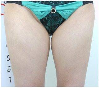共立美容外科 仙台院のベイザーリポによる脂肪吸引の症例写真(ビフォー)