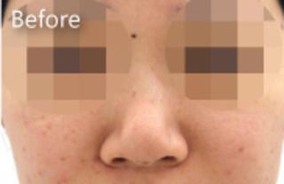 MIYAフェイスクリニックの鼻尖縮小、鼻翼縮小(中間法)の症例写真(ビフォー)