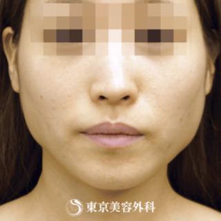 東京美容外科 東京新宿院のえらボトックスの症例写真(ビフォー)
