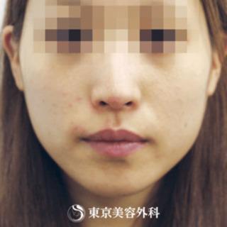 東京美容外科 東京新宿院のえらボトックスの症例写真(アフター)