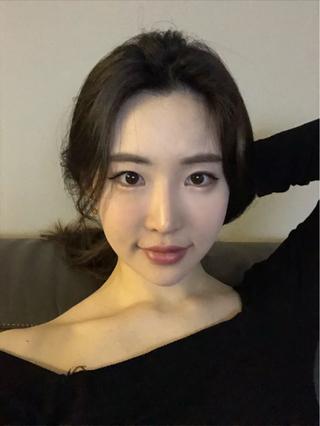 TS美容外科の輪郭手術(エラ、アゴ)、目の手術、お鼻の手術の症例写真(アフター)