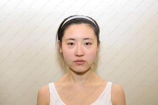 TS美容外科の輪郭手術(エラ、アゴ)、目の手術、お鼻の手術の症例写真(ビフォー)