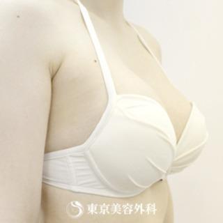 東京美容外科 東京新宿院の豊胸(バッグ挿入)の症例写真(アフター)