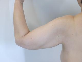 共立美容外科 仙台院のベイザーリポによる脂肪吸引の症例写真(アフター)