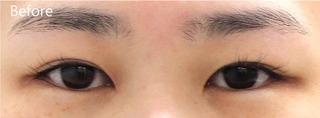 MIYAフェイスクリニックの見開き拡大手術(眼瞼下垂手術)の症例写真(ビフォー)