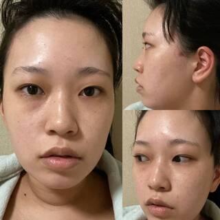 TN整形外科のノースカ鼻整形、目頭、目尻切開、二重まぶた全切開、脂肪移植の症例写真(ビフォー)