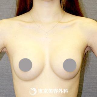 東京美容外科 東京新宿院の豊胸(内視鏡下マンマバッグ)の症例写真(アフター)