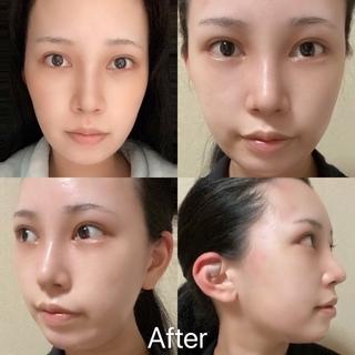 TN整形外科のノースカ鼻整形、目頭、目尻切開、二重まぶた全切開、脂肪移植の症例写真(アフター)